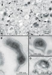 nanobacterii