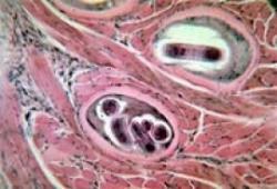 trichineloza