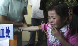 copil chinez intoxicat cu plumb