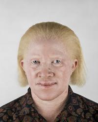 albinos african
