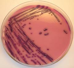 Masinile viitorului ar putea fi alimentate cu benzina produsa de bacterii!