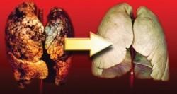 Fumatorii romani ard zilnic 5 milioane de pachete cu tigari. Au viciul 85 la suta dintre bolnavii de cancer bronhopulmonar